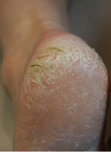Before Callus Peel Treatment